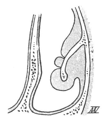 Рисунок 1. Техника поверхностной электрокаустики (из учебника Laurens, 1924)