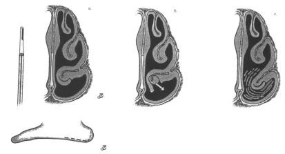 Рисунок 5. Техника передней турбинопластики по Pirsig and Huizing (из учебника Huizing and De Groot, 2001)