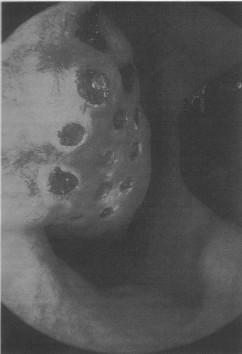 Рисунок 6. Обработка лазером нижней носовой раковины (по Werner and Lippert, Rhinology 35: 33-36, 1997)