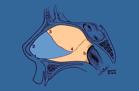 Перегородка носа (2 — хрящ, 3–5 — костный остов)